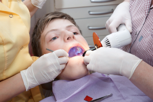 Dental Sealants for Kids