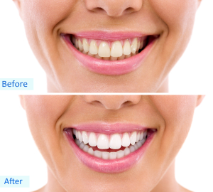 Towson Teeth Whitening