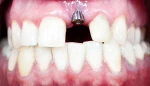 Dental Implants Pikesville