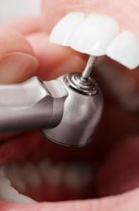teeth filling